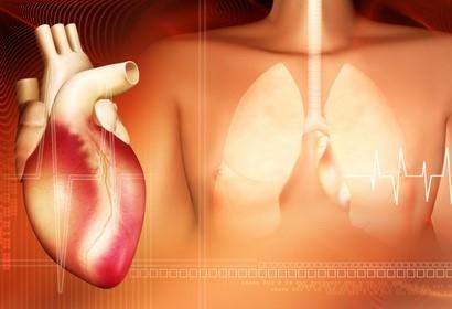 Upala srčanog mišića