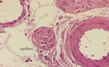 Oboljenja arterija, arteriola i kapilara