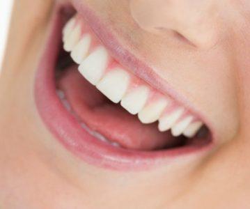 Kako prirodnim putem osvježiti dah i spriječiti bolesti usne šupljine