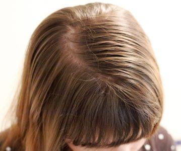 7 prirodnih rješenja za masnu kosu i tjeme