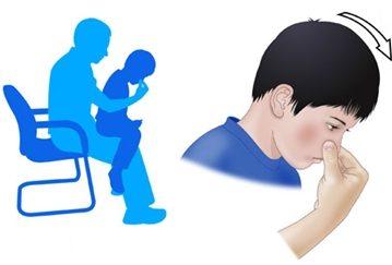 Zaustavljanje krvarenja iz nosa