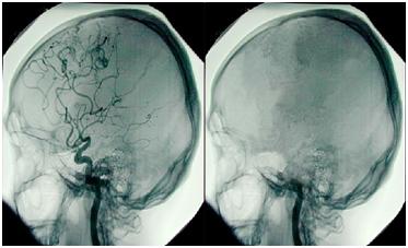 Šeriatskopravne posljedice medicinske dijagnoze o smrti mozga