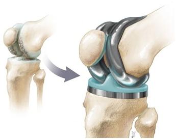 Endoproteza koljena
