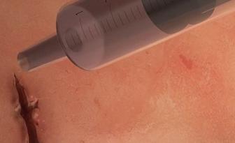 Kirurško ljepilo koje djeluje za 60 sekundi